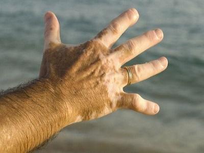 白癜风白斑治疗效果不明显是什么原因