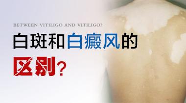 成都哪家白斑病医院最好?儿童白癜风有什么样症状?